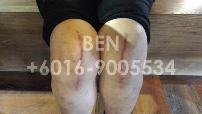 Thanks Ai 感谢爱 - 膝盖疼的治疗方法